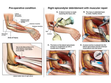 Right Elbow Injury with Surgical Repair