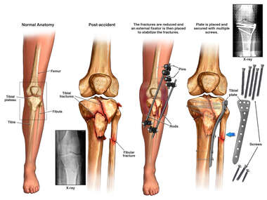 Left Tibial Plateau Fracture and Surgical Fixation