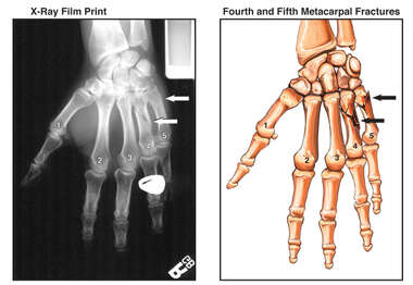 Right Hand Fractures