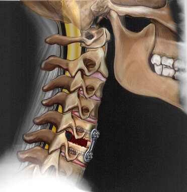 Fixation of the Cervical Spine