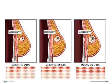 Progression of Breast Cancer