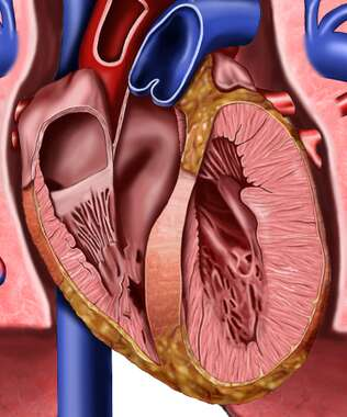 Heart Chambers and Great Vessels, Detail Cut-away View