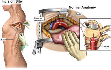 Thoractomy