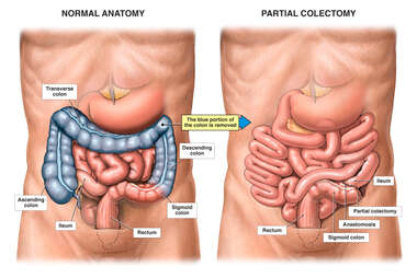NORMAL ANATOMY PARTIAL COLECTOMY