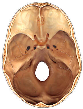 Intracranial Skull Anatomy
