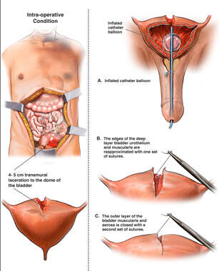 Intra-operative Bladder Injury with Surgical Repair