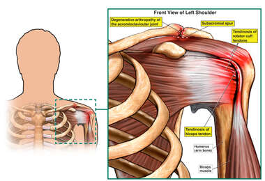 Left Shoulder Injuries - Front View