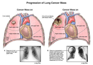 Progression of Lung Cancer Mass