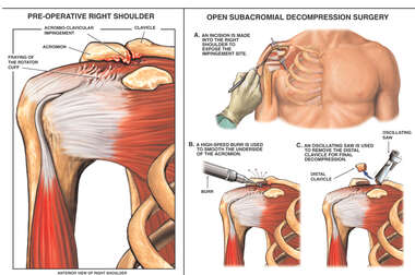 Right Shoulder Impingement Syndrome with Surgical Decompression