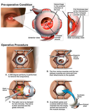 Left Eye Injury with Surgical Enucleation