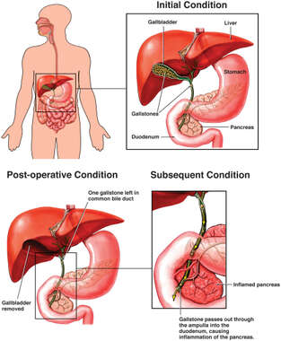 Post-operative Passage of Gallstone with Subsequent Pancreatitis
