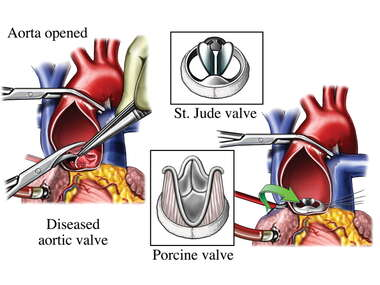 Aortic Valve Replacements - St Jude vs. Porcine