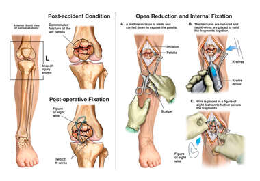 Left Patellar Fracture and Surgical Fixation