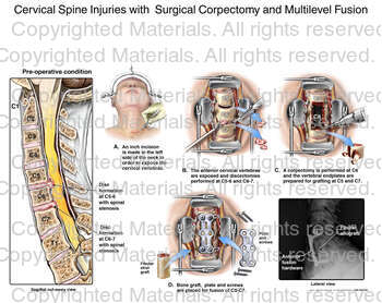 Cervical Spine Injuries with  Surgical Corpectomy and Multilevel Fusion