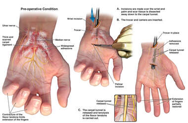 Carpal Tunnel Syndrome and Flexor Tendon Contracture with Surgical Release