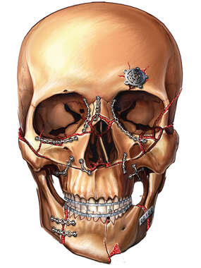 Skull Fracture Fixation