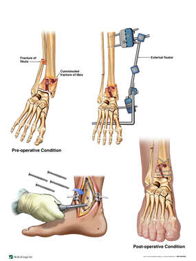 Right Ankle Fractures with Surgical Fixation