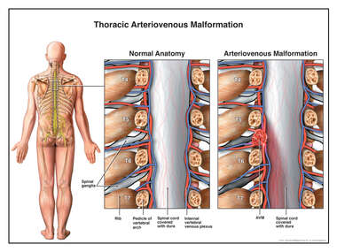 Thoracic Arteriovenous Malformation