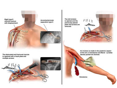 Traumatic Right Shoulder Injury with Surgical Repair and Subsequent Hardware Removal