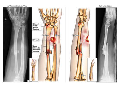 Left Open Radius and Ulna Fractures
