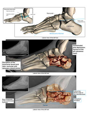 Severe Crush Injuries to the Left Foot and Subsequent Severe Flat Foot Deformity