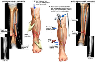 Left Tibial Fracture with Surgical Fixation