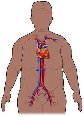 Obese Female Torso with Heart and Great Vessels, Anterior View