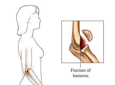 Elbow Fracture - Lower Humerus, Type 1