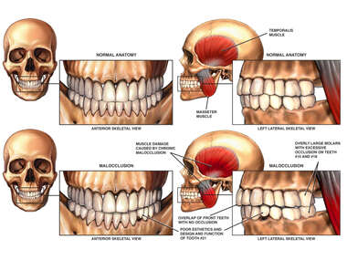 Malocclusion of the Teeth