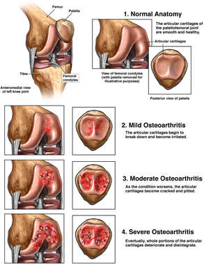 Patellofemoral Osteoarthritis of the Knee
