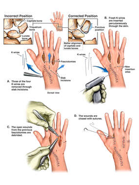 Wrist Revision Procedure
