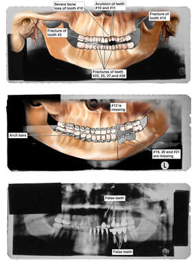 Progression of Dental Injuries