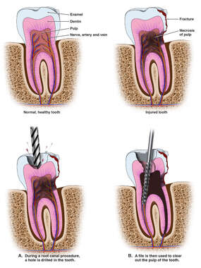Internal Tooth Injuries with Multiple Root Canal Procedures