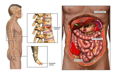 Injuries of the Abdomen, Spine and Coccyx