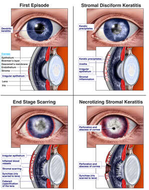 Stages of Ocular Herpes