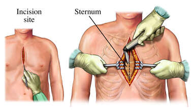 Coronary Artery Bypass Graft: incision