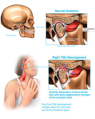 Temporo-mandibular Joint (TMJ) Derangement