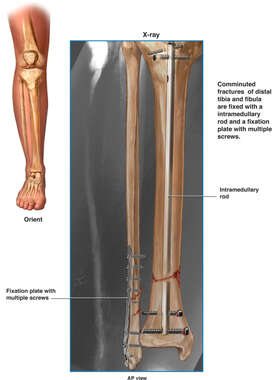 Fixated Leg Fracture