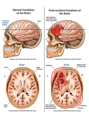 Normal vs. Post-accident Brain and Head Injuries