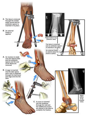 Traumatic Injuries of the Right Ankle with Surgical Repairs