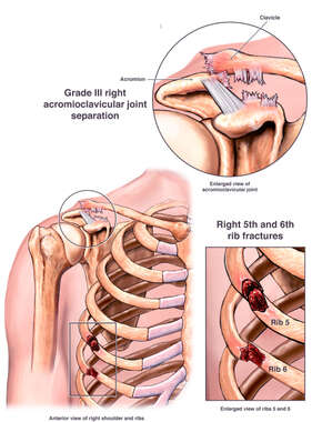 Post-accident Injuries of the Right Shoulder and Ribs