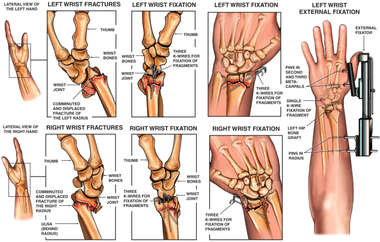 Progression of Bilateral Wrist Fractures