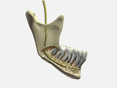 The Mandibular Nerve: Lateral View