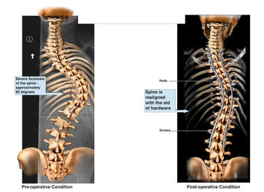 Spinal Realignment