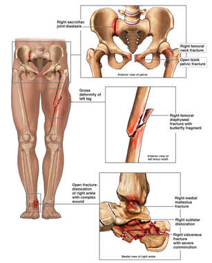 Male Lower Extremities with Orthopaedic Injuries to the Pelvis, Femur, Ankle and Calcaneus