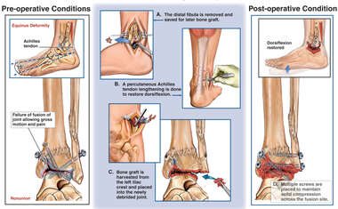 Nonunion of Ankle Fusion and Equinus Contracture with Surgical Repair