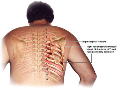 Impact Injury to Scapula and Lateral Ribs