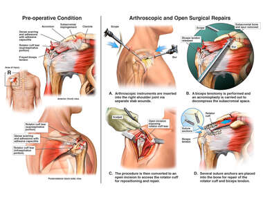 Right Shoulder Rotator Cuff Tear with Surgical Decompression and Repair