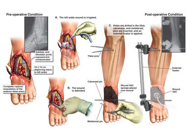 Open Left Ankle Wound, Soft Tissue Degloving, and Fractures with Initial Irrigation and Debridement and Application of External Fixator