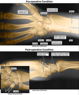 Film Colorizations with Post-accident Wrist Injuries and Surgical Fixation